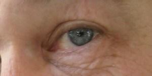 Auge - Brennende-Augen - Ich schau dir in die Kerze Kleines